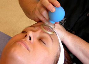 facial cupping